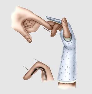 Imobilização após cirurgia de tendão flexor.