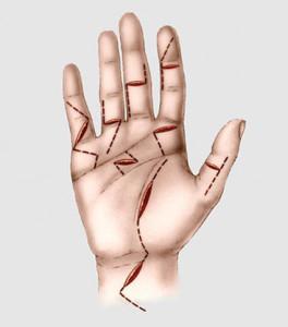 Incisões para cirurgia de tendão da mão.