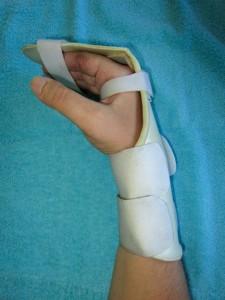 Imobilização com tala removível após a cirurgia.