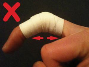Recuperação na lesão de ponta de dedo.