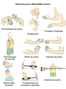 Epicondilite lateral - Fisioterapia.