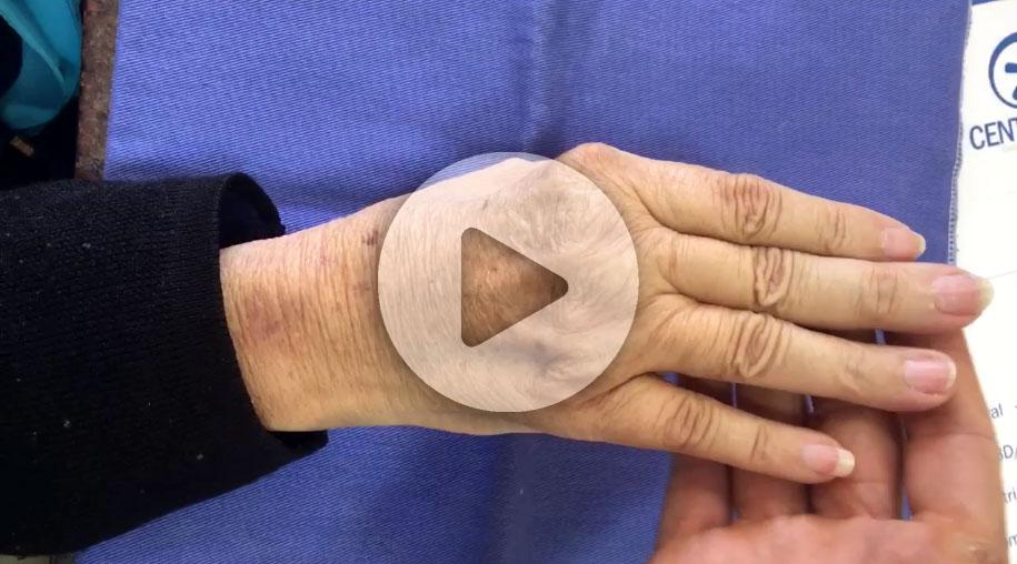 reumatoide-artrite