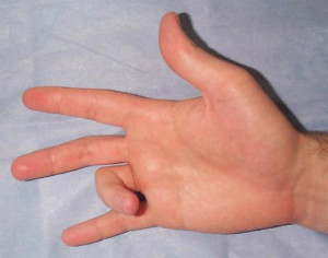sintomas do dedo emgatilho