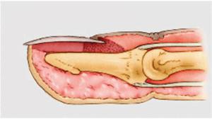 Dedo em martelo - Anatomia
