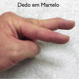 Dedo em martelo - Diagnóstico