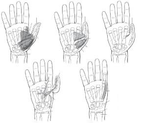 mao-congenita-hipoplasia