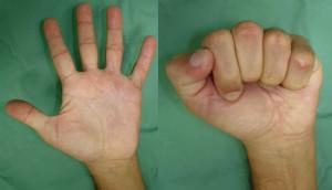 Doença de Dupuytren - Fisioterapia