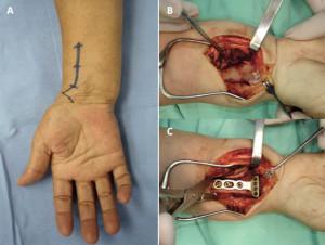 Cirurgia de fratura de punho.