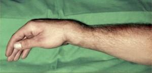 Fotografia de uma fratura de punho