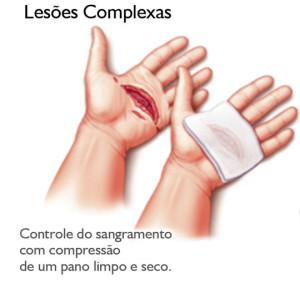 Corte no tendão flexor da mão