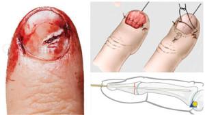 Lesão de ponta de dedo não grave