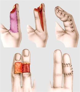 Outro tipo de lesão de ponta de dedo.