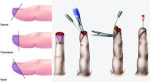 Lesão de ponta de dedo - grave