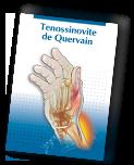 Baixe a cartilha de Tenossinovite de Quervain