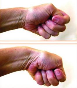 Tenossinovite, diagnóstico