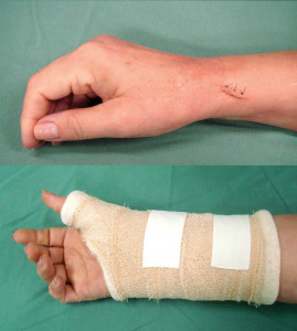 Tenossinovite-pós-operatório