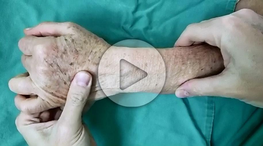 video-lesão-fibrocartilagem
